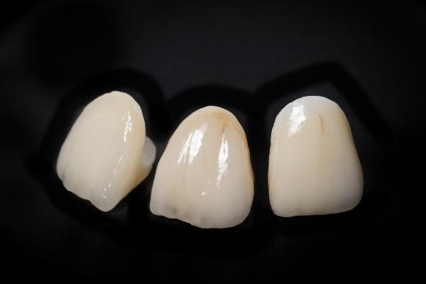 ceramic crowns